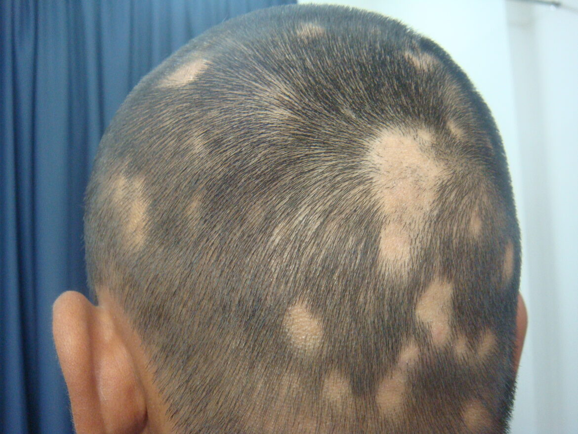 Alopecia areata: Recurrent Patchy Hair Loss