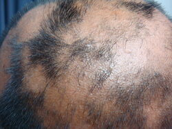 Hair loss treatment Cosmolaser Sharjah
