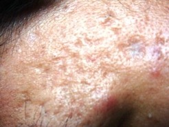 acne scar treatment sharjah cosmolaser